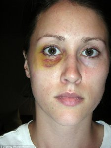 Colbie Holderness, first wife of Rob Porter, with a black eye,